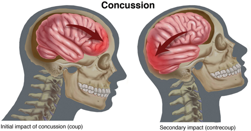 Concussion Recovery in Baltimore: Concussions Explained